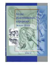 Картинка к книге Эмилио Итала - Атлас абдоминальной хирургии: Том 2. Хирургия желудка и двенадцатиперстной кишки