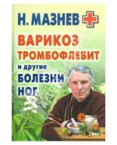 Картинка к книге Иванович Николай Мазнев - Варикоз, тромбофлебит и другие болезни ног