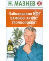 Картинка к книге Иванович Николай Мазнев - Заболевания ног: варикоз, артрит, тромбофлебит