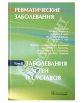 Картинка к книге ГЭОТАР-Медиа - Ревматические заболевания. В 3-х томах. Том 2. Заболевания костей и суставов: руководство
