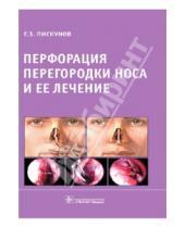 Картинка к книге Захарович Геннадий Пискунов - Перфорация перегородки носа и ее лечение