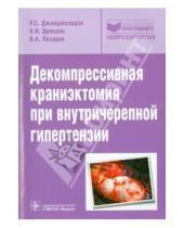 Картинка к книге ГЭОТАР-Медиа - Декомпрессивная краниэктомия при внутричерепной гипертензии